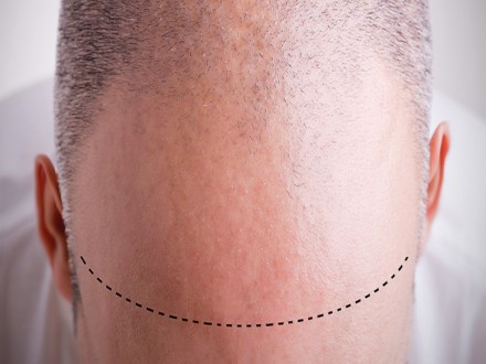 Hair Transplant Package in Istanbul - Estethica Atasehir