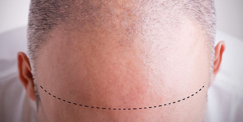 Hair Transplant Package in Istanbul - Dr. Ozge Ergun Plastic Surgery Clinic - Main