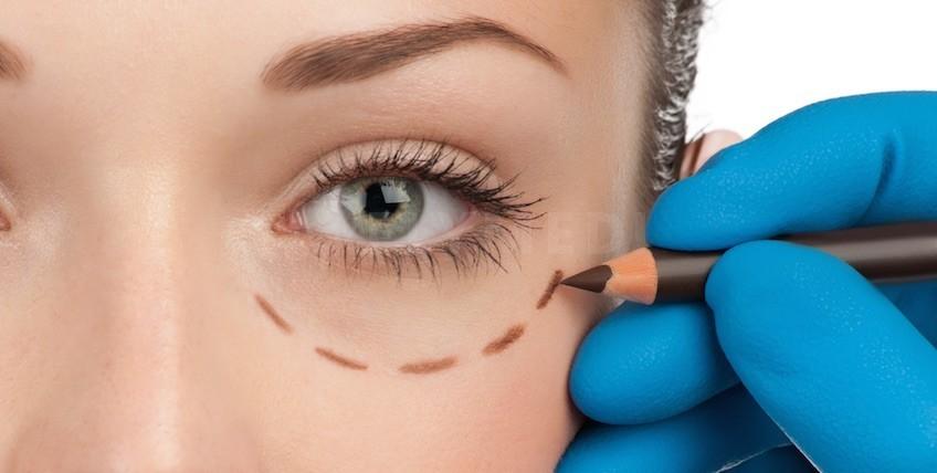 Pachet Corectie Estetica a Pleoapelor in Istanbul - Dr. Ozge Ergun Clinica de Chirurgie Plastica - Principala