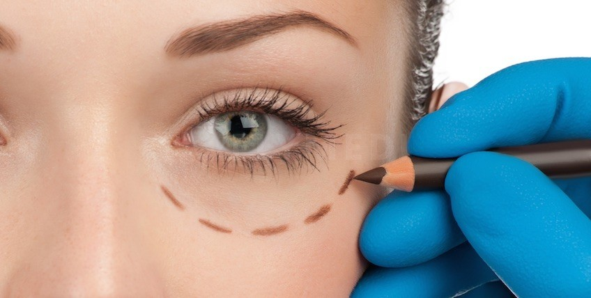 Eyelid Surgery Package in Istanbul - Estethica Atasehir - Main